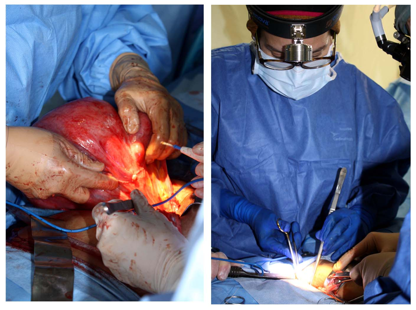 Dr. Tapia-Santiago performing an operation in Guatemala using Enova Illumination LED surgical headlight.