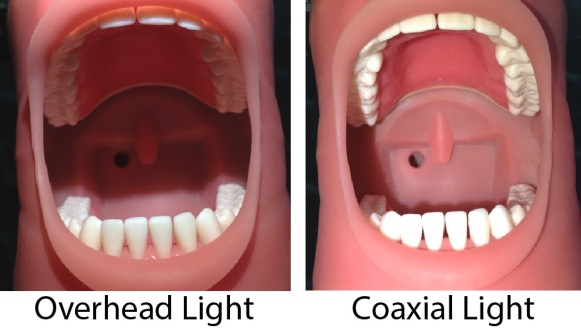 Overhead vs coaxial